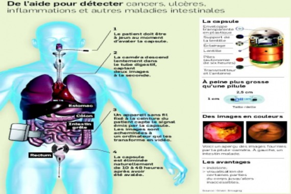 Une pilule-caméra qui explore le corps | LesAffaires.com